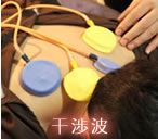 干渉波電気治療器